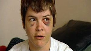 Edmonton Lesbian Attacked in Anti-Gay Hate Crime