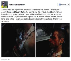 Blackburn Facebook