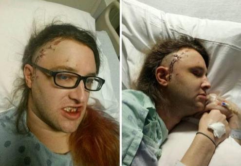 Transgender attack