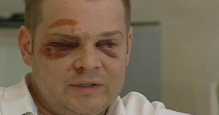 Gay Man Beaten in Ft Lauderdale After Telling Man 'Good Morning'. Floridian